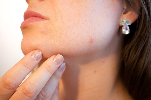 easy-tips-skin